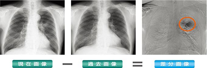 胸部レントゲン経時差分処理システム(例)