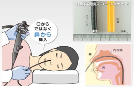 当院の上部消化管内視鏡検査の特徴