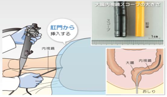 下部消化管内視鏡検査(⼤腸カメラ)の⽬的